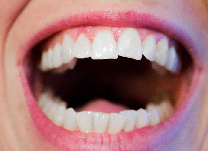 teeth-1652937_1280-(1)