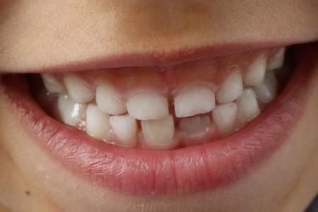 Elektryczne dbanie o zęby