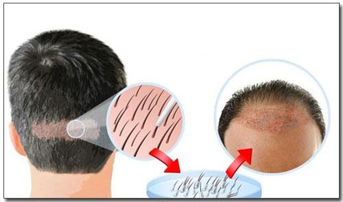 O przeszczepach włosów