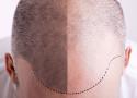 Kto może zdecydować się na przeszczep włosów